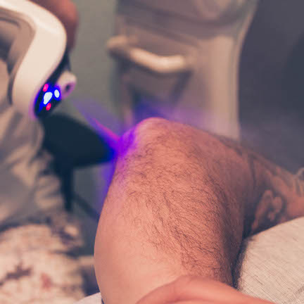 Man Being Treated With Spot Cryotherapy